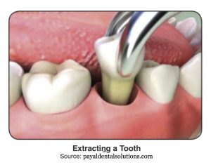 extracting a tooth